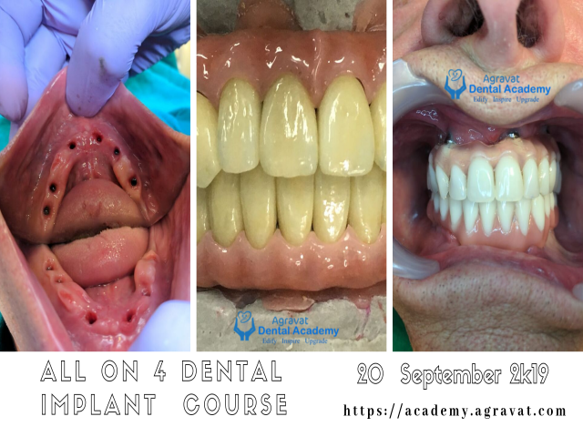 All on 4/6 Dental Implant Training Course, Hands On, Live Surgery in Ahmedabad